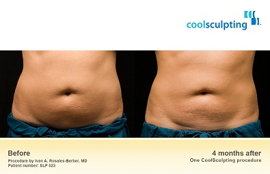 Deerfield Beach Florida Fl Coolsculpting By Zeltiq